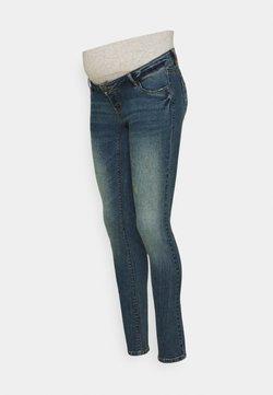 MAMALICIOUS - MLFONTANA SHORT BUMPBAND - Vaqueros slim fit - medium blue denim/dirty wash